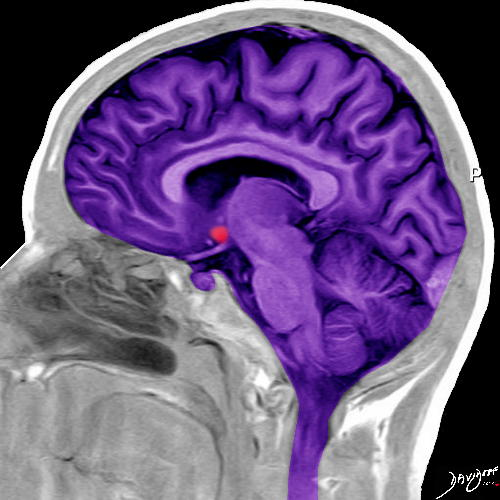 brain, MRI, sagittal view, T1 weighted, forebrain, midbrain, hindbrain, nucleus accumbens, corpus callosum, ventricles, spinal cord, skull, head, cranium, art, the common vein, art in anatomy, Ashley Davidoff MD