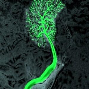 liver, vein, lobular vein, venogram, X-ray, radiology, tree, trees in the body, art, the common vein, art in anatomy, Ashley Davidoff MD