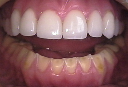 Preventing Tooth Erosion