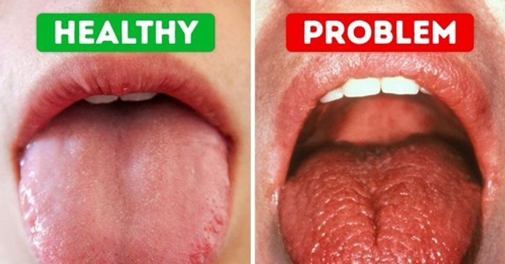 Dry Mouth Dangers