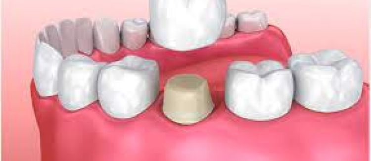 What Causes Dental Crown Damage?