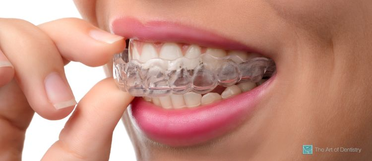 Are You an Invisalign® Candidate?