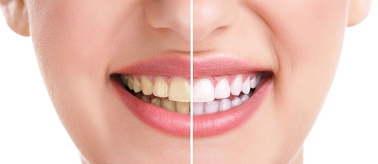 Teeth Whitening Side Effects: Knowing What to Expect