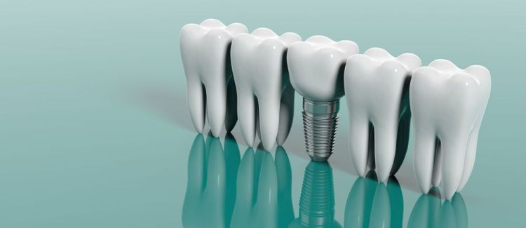 What is the Timeline for Dental Implants?