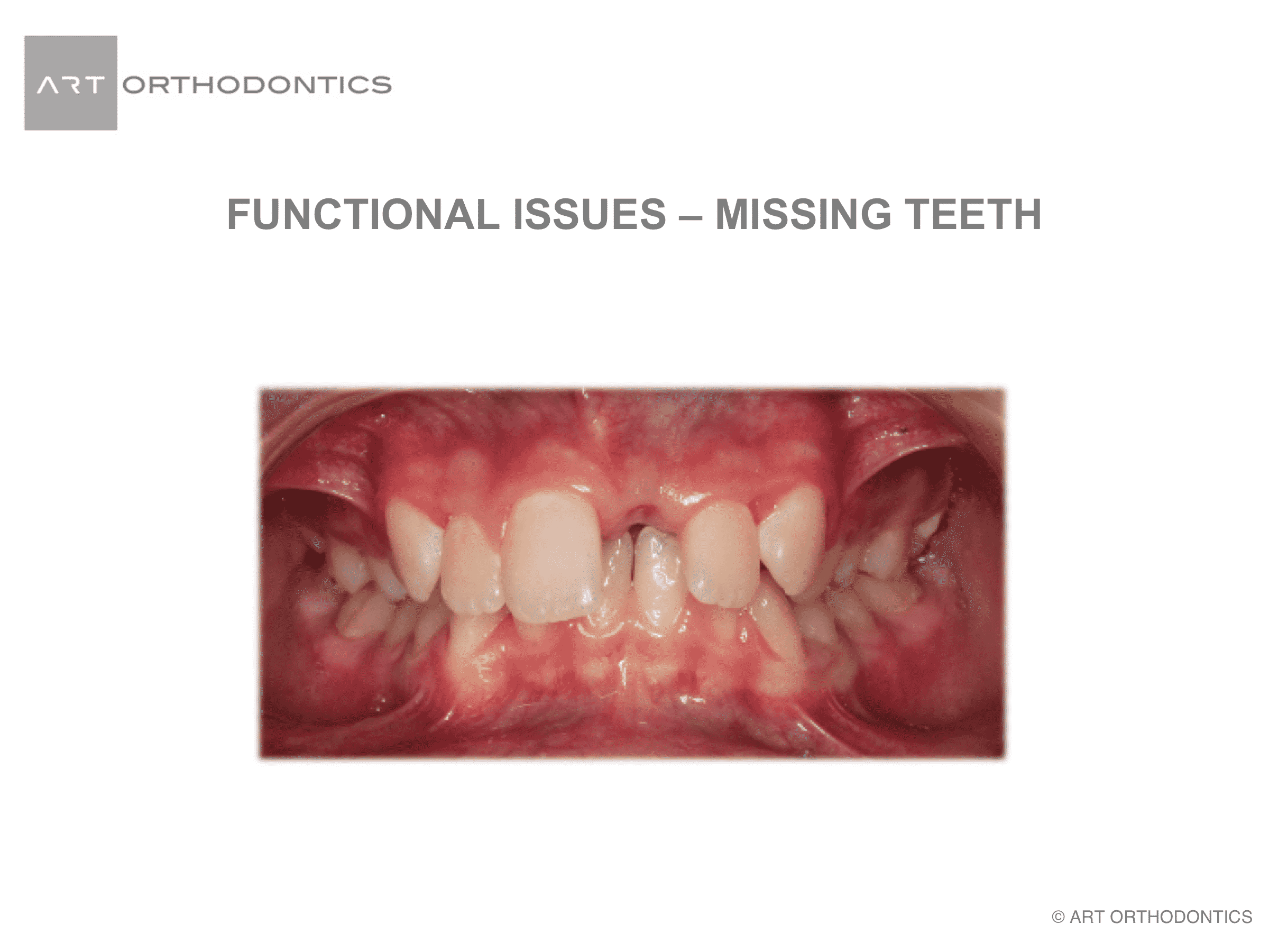 Missing upper left central incisor after trauma before orthodontic treatment
