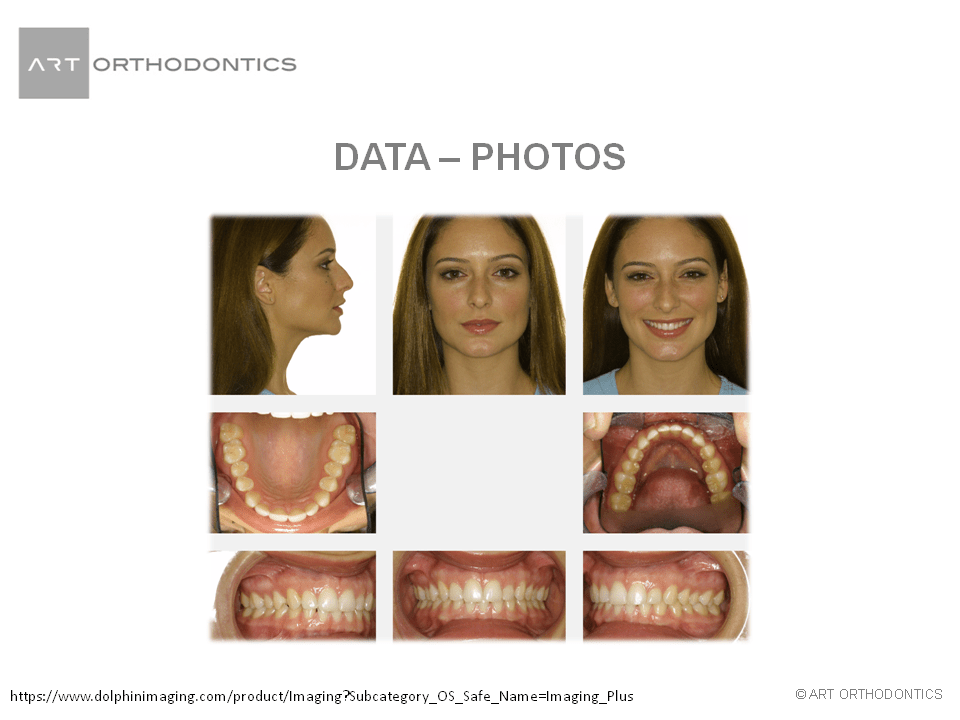 Composite photos of patient