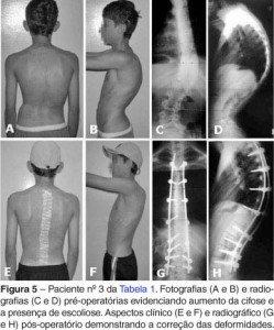 Correção Cirurgica Cifose Foto: Revista Brasileira de Ortopedia