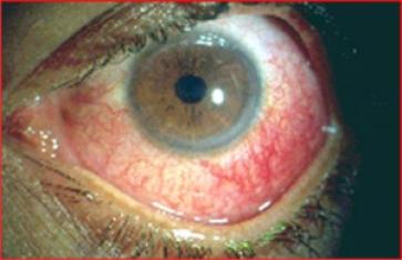 """Uveite é assintomática, olhos vermelhos, dor ocular, lacrimejando, dificuldade para enxergar e dor de cabeça. O diagnóstico é feito através do exame ofatalmológico da """"lâmpada de fenda"""" - deve ser repetido de 3 em 3 meses, em crianças com AIJ de início Oligoarticular com Fan positivos."""