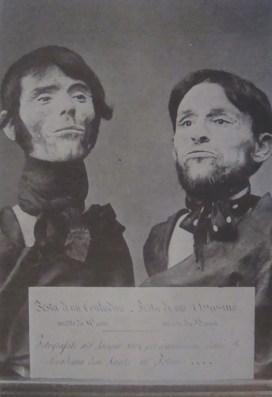 Testa di contadino - Testa di assassino Fotografate nel giugno 1864