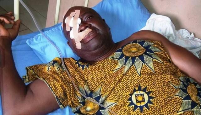 Injured Journalist Agie