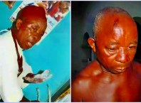 L-R: Victims of Suspected Fulani Attacks in Ubulu-Uku Community of Delta State, Late Chief Chikwe Ojinji and Injured Victim