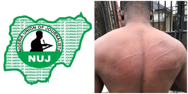 Pics Inset: Injury on Delta Journalist, Comrade Akpokona Omafuaire as a result of Assault by Policemen