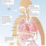mesothelioma u0026 asbestos images, diagrams u0026 graphsasbestos in the body diagram