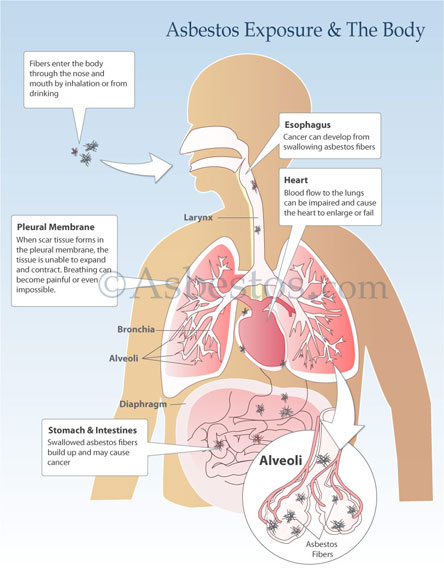 mesothelioma how much exposure bietikamesothelioma u0026 asbestos images, diagrams u0026 graphs