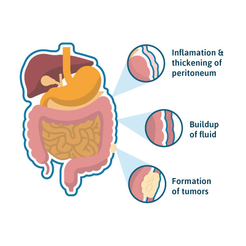 Diagram showing the most common symptoms of peritoneal mesothelioma