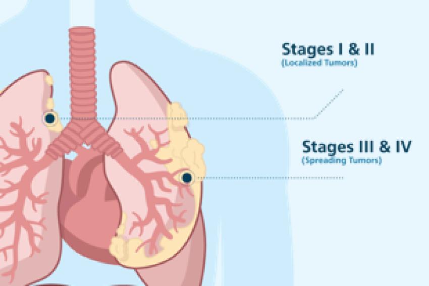 pleural mesothelioma symptoms, diagnosis u0026 treatments