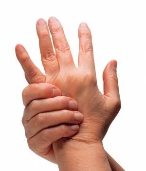 Beneficios de la Terapia Ocupacional en caso de artritis reumatoide