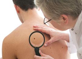 Bahaya Viagra, Dapat Menyebabkan Penyakit Melanoma