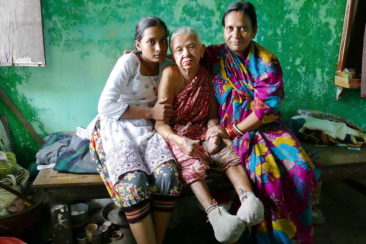 Lakshmi, heute 70 Jahre, seit dem 17. Lebensjahr an Lepra erkrankt (Foto: C.M.)