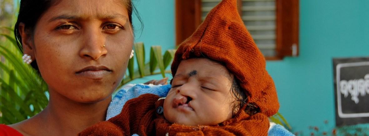 Mutter mit krankem Kind vor der Operation (Foto: C.M.)