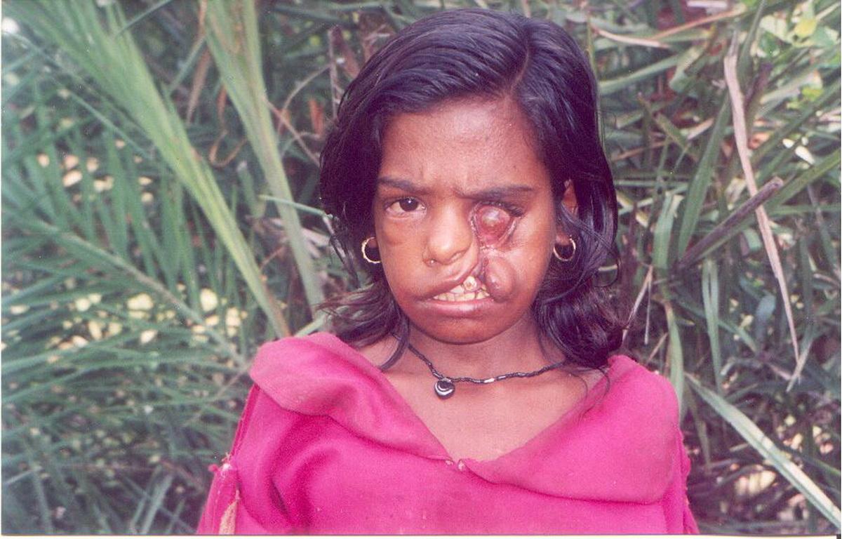 Mädchen mit einer Lippen-Kiefer-Gaumen-Spalte vor der Operation (Foto: Ashakiran)