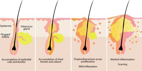 small resolution of acne nodule diagram automotive wiring diagrams adrenal nodule diagram acne nodule diagram