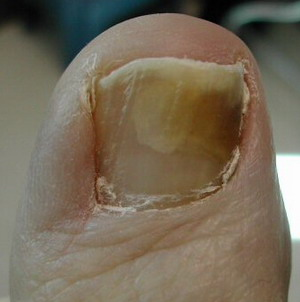 Nail Fungus Is An Unsightly Problem That More Mon Among Older People Who Have Diminished Blood Circulation And May Wear Sweaty Covered Shoes Or Nylon