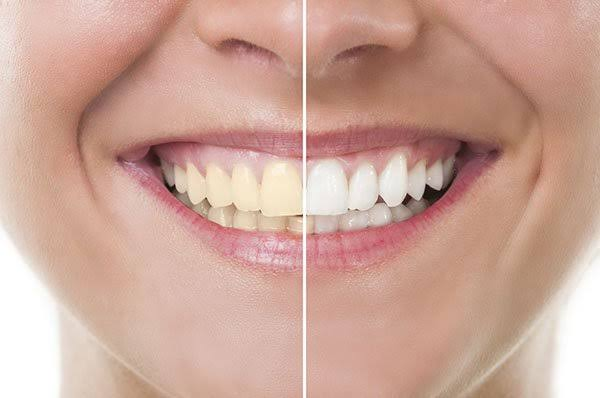 Got yellow teeth? effective natural ways to whiten teeth