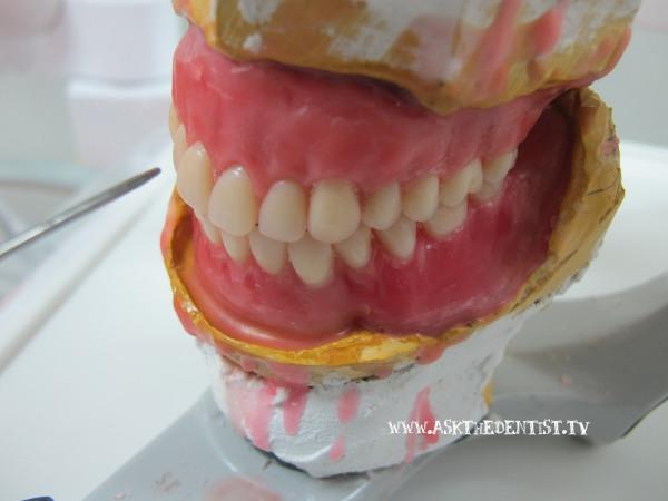 Affordable complete dentures