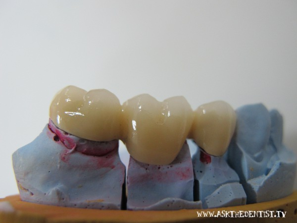 Affordable fixed partial denture