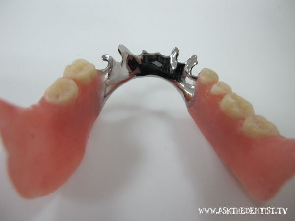 Affordable removable partial denture