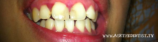 Restorative Dentistry Philippines