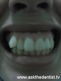 Takot sa Dentist - askthedentist.tv
