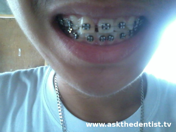 Braces Patient na nagdududa. - askthedentist.tv