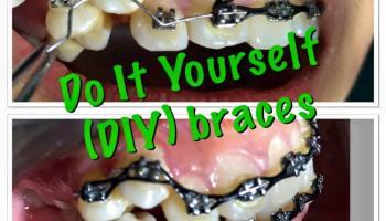 Fashionable braces diy braces ask the dentist braces faq solutioingenieria Gallery