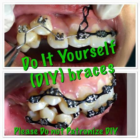 DIY Braces are harmful to your oral health.