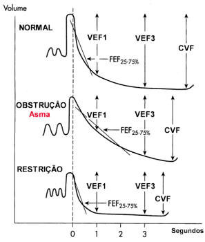 Asma Brônquica/Fisiopatologia da Asma :: Dr. Pierre d