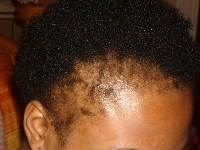 How To Prevent and Treat Hair Loss in  Black Women