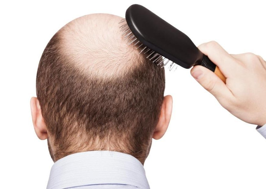 Balding, premature graying tied to higher heart disease risk
