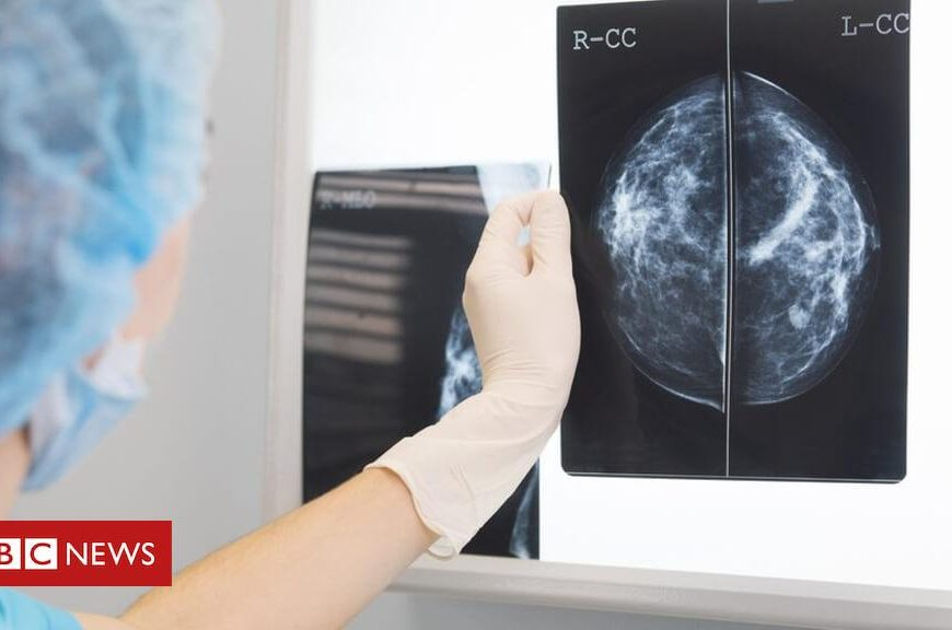 'One-stop shops' for cancer diagnosis