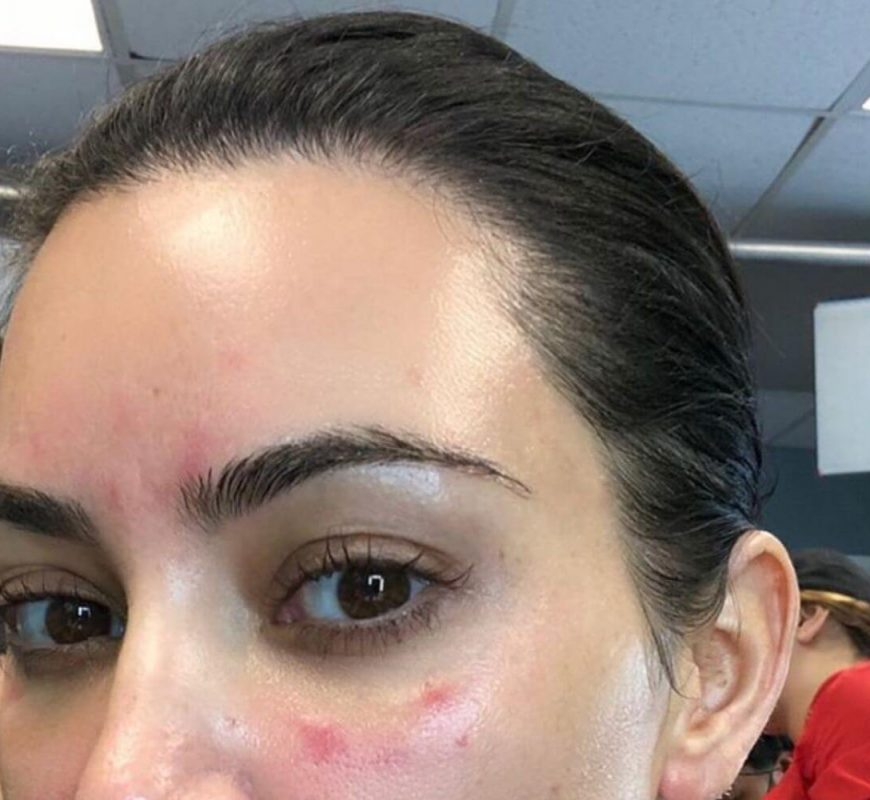 Kim Kardashian Shares Pic Of 'Extremely Bad' Psoriasis On Her Face