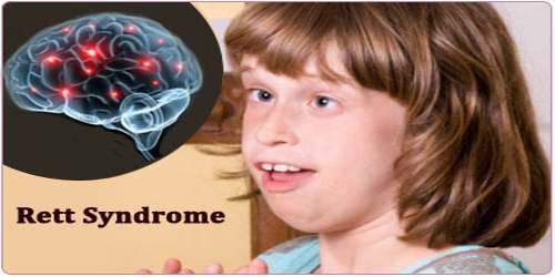 Rett Syndrome  Assignment Point