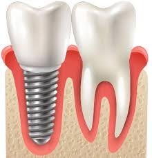 歯科インプラントのメインテナンスの重要性【大阪市都島区内の歯医者|アスヒカル歯科】