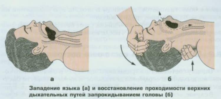 Trato respiratório pendente