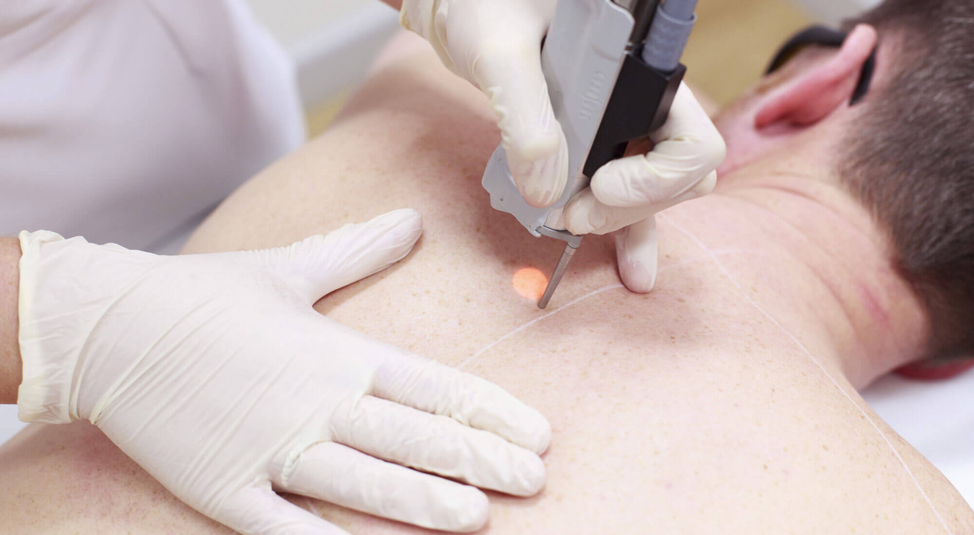 ITEC Laser and Light Laser hair removal courses Dublin