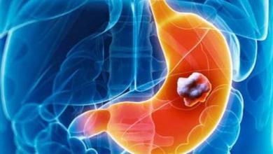 "Photo of ""سرطان المعدة"" أحد أكثر الأنواع المنتشرة بالسلطنة.. وجراح متخصص يوضح مسبباته وعلاجه"