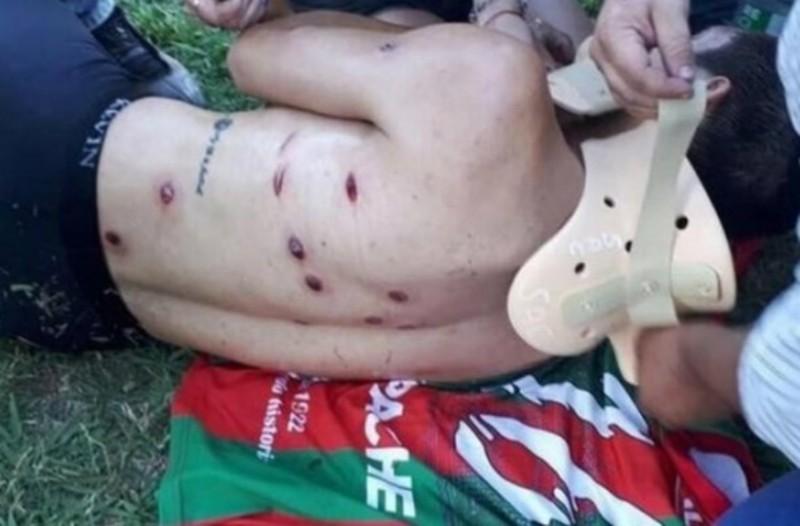 Φρίκη: Αστυνομικοί πυροβόλησαν ποδοσφαιριστές με σφαίρες καουτσούκ (Σκληρές εικόνες)