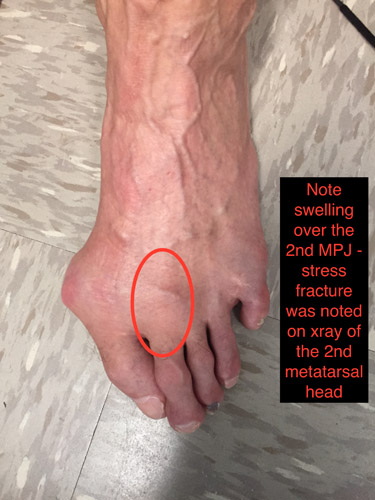 diagram of tibia stress fracture simplicity landlord dlx wiring fractures and their treatment dr brian fullem athletebiz figure 1