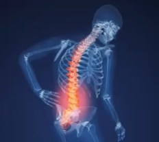 xray lower back pain