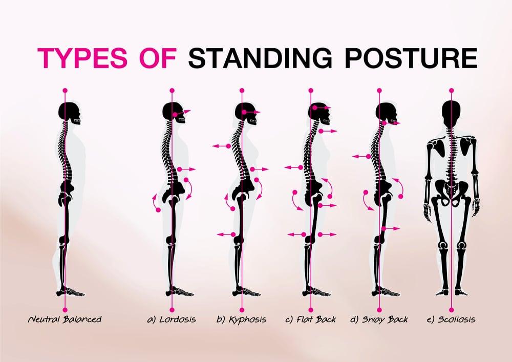 Postures statiques normale et pathologiques